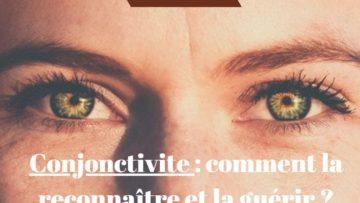 Conjonctivite : comment la reconnaître et la guérir ?